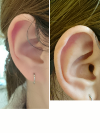 ピアス位置について質問です。  私の耳の形的にヘリックス近くのアウターコンク、アンテナヘリックス、トラガスは可能でしょうか? 右耳です。  皆様の客観的な意見を教えていただきたいの で、病院やピアス...