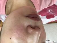 ハウスオブローゼのoh!babyを 顔に使って優しく マッサージするようにこすりました。 鼻やおでこはツルツルに なったのですが 頬が赤くなってしまい ビニール肌みたいになってしまいまし た。 これはどうしたら治りますか? 炎症してますか?