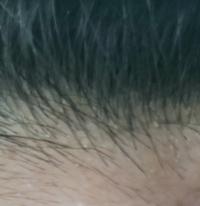頭皮 角 栓