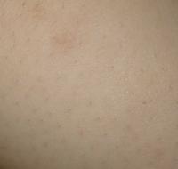 閲覧注意 普段カミソリで剃っているのですが見た目が酷くなってきました。治す方法と酷くならない剃り方ありませんか? お風呂→ボディークリーム→カミソリ→ボディークリームで剃ってます。