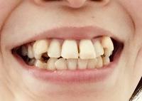 歯並びについて質問させて下さい。  30代女でこの歯並びは矯正した方が良いのか悩んでいます。  男性の方、正直、 歯並びの悪い女性はそれだけでもかなり幻滅してしまいますか?  画像の 歯並びは引いてし...