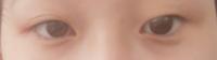 画像のようなしじみ目小さい超絶ブスお目目なのですがどうやったらマシになりますか? 二重にしたらマシになりますか? 埋没はする予定です。
