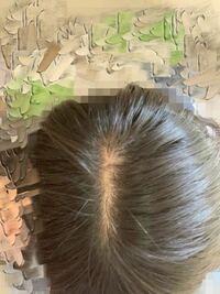 この頭皮はハゲてますか? 癖で髪を抜いてしまいます。不安です(−_−;)