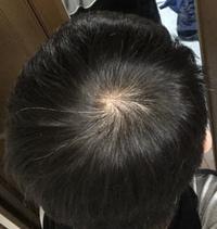 育毛剤について質問です。 今チャップアップという育毛剤を使用しているのですが、育毛剤がうまく頭頂部に付きません。髪についてしまいます。 つむじとつむじ周りにつけたいのですが髪が邪魔 です。見えないの...