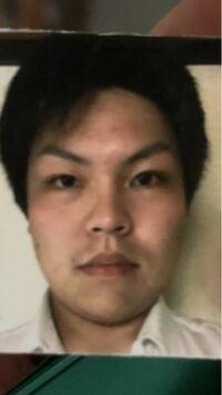 吉沢亮みたいな目になりたいですがどう整形すればいいでしょうか