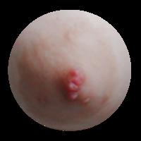 画像あり 閲覧注意⚠ 乳首の形が変でとてもコンプレックスです。 やはり形が変だと男の人は嫌ですか? また女の方で同じような悩みがある人はいますか? 病院に行く場合は何科の病院にいって 診てもらえばいい...