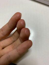 ギター 指について ギターをやってると指先の皮が剥けて次第に硬くなっていきますが、みなさんは指先全体が硬くなっていますか?それとも部分的にですか?  私は写真のように指先の側面寄りの部分ばかりが皮が剥...