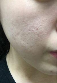 ※肌の画像あります 毛穴黒ずみ、ニキビ跡、クレーターが酷いです。 どのようにしたら改善しますか? 洗顔、化粧水、いろんなものを試しましたが変わりません。レーザーをしたら改善しますか??