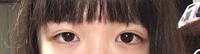 左右非対称な目 目の大きさや形が左右非対称なのですが、美容整形などでどうにかなりますか? 写真右の目に合わせたいのですが...