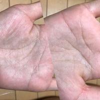 手の濃い線が両手とも4本あります。 周りに4本ある人がおらず、珍しい! と驚かれることが多々ありました。 なんの意味があるのですか?  因みに右側が右手、左側が左手です。 左手は繋が ってるように見え...