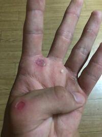 野球素振り 素振りをしているのですが、手が痛すぎて触れません。最近は絆創膏を付けてやっているのですが、すぐに取れてしまって使い物になりません。皆さんはどうやって対処し、振っていますか?