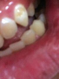 歯の表面が溶けてしまいました 一生使う歯なので治したいですどうしたらいいでしょうか? 画像見苦しいかもしれませんすみません(◞‸◟)