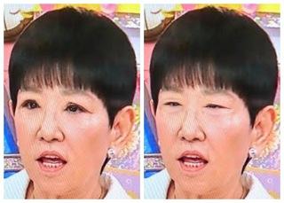 アキ子 変わっ た 顔 和田