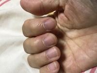 爪の手入れについて、画像のように甘皮周りの硬くなった皮?皮膚?はどうすればいいのでしょう? 私の経験から言うと、ニッパーなどで切ってしまったら生えてくる爪が段になって伸びてきますよ ね? 多分爪切り...