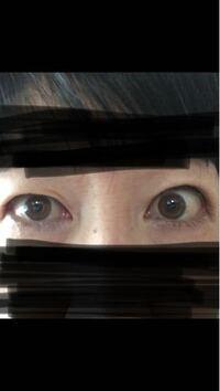 甲状腺目の大きさ〜右目だけひとえで左右差がコンプレックスなので美容外科で埋没法をお願いしたところ数回カウンセリングしてやることになったのに、 先生が最終確認の診察でやっぱりどちらかと言うと左目の方が大きすぎている、右目は小さいけれどむしろ白目と黒目の割合はこっちが普通。  左目は大きいけど黒目の上の白眼の割合が多いし、眉毛も右よりかなり上がっている、もしかして甲状腺の症状かもしれないので埋没...