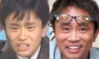 ダウンタウンの浜田さんが一重から二重まぶたになったのって何歳くらいですか?