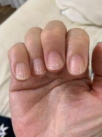 パラジェルオフ後について教えて下さい。 パラジェルを月に一度ぐらいの間隔で付け替えていました。 4回目の時に人差し指の爪の中程から剥がれてしまい、痛みもあった為、全ての指を落としてもらいました。 する...