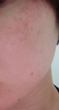ハトムギ化粧水に変えてから赤み?ぶつぶつ?発疹?が出るようになりました・・・ オイリー肌で顔のベタつきやくすみがずっと気になっており、おすすめしてもらったハトムギ化粧水に変えました。  使い始めて数日は...