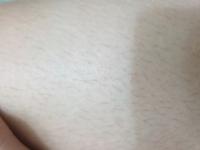 剃り直し以外でチクチクムダ毛をどのように直せばいいですか?(写真のは太ももです