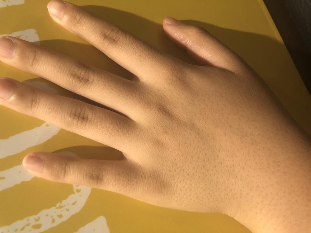 手の毛穴が目立って困っています。 この毛穴を消す方法はありませんか? 受験生なので脱毛などは難しい