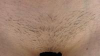 VIO脱毛について。 医療脱毛1回目を9月11日に行いました。 徐々に毛が抜け始めましたが、まだら状態です。 初めての脱毛なのでこの状態はよくある事なのか分からず、経験者さんにお伺いした いのですが、、当...