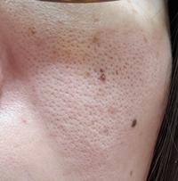 頬の毛穴が酷すぎます これは何毛穴ですか? レーザーより効果あるものありますか?