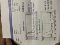 光トポグラフィーの検査結果なんですけど  このグラフは健常ですか?鬱だと思いますか?