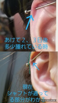 インダストリアルの排除について。 一ヶ月ほど前にインダストリアルをピアススタジオで開けてもらいました。 今まで特に痛みもなく、特にトラブルもありませんでした。 しかし、最近になって からヘリックス側が排除されているのではないかと不安になりました。 そんなに耳の写真を撮ったりしていなかったので、あけて2、3日くらいの耳が多少腫れている時の写真しかなかったのですが、今の状態はシャフトがど...