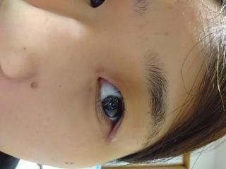 軟膏 病名 ネオ メドロール ee ステロイドの強度を一覧にしました│顔への誤使用を防止するために