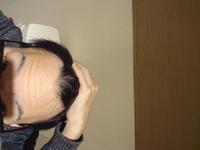 私はM字ハゲですかね?前髪を上げるとこんな感じです。二十代でこの頭はヤバイですかね?