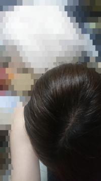 今の状態に育毛剤使ったら髪の毛増えますかね?髪の毛細くて嫌です