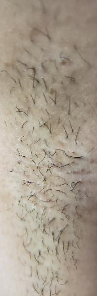 閲覧注意  剃って一週間でこの長さって毛深いですかね?  脇です。  大学生の女なのですが、ワキ毛の濃さに悩んでます。剃って半日もしないうちにポツポツ黒くなって、一週間でこのあり様です。  ひとつの毛穴か...