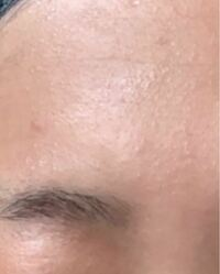 閲覧注意 肌の画像があります。 一年以上、肌がこの状態です。 小さいぶつぶつがたくさんあります。 これはニキビですか? どうすれば治せますか?