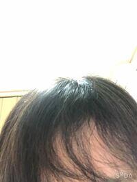 前髪がくせ毛で、ストレートパーマを当てずにまっすぐになる方法ありませんか?