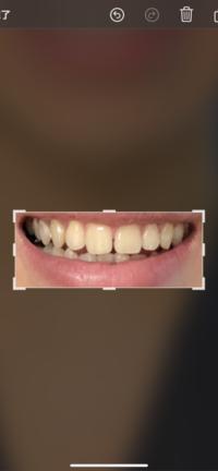 前歯が隙間歯でコンプレックスです。女性からしたらこの隙間歯は気になりますか?自分は笑っても歯茎はあんまり出ないです。『性格磨け』とかそういうう回答控えてくれるとありがたいです。ちな みに年齢は19歳...