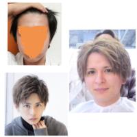 髪型についての相談お願いします。 僕は左上なのですが右の髪型と左下の髪型、どちらの方が似合うと思いますか?(顔の形的に) また、似合いそうな髪型はありますか? よろしくお願いします!!