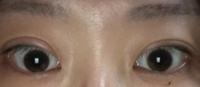 解決策を教えて下さい。 5年程前に眼瞼下垂の手術を受けました。 最初は気にならなかったのですが最近左右差があまりにもひどいと思っています。 顔の歪みやむくみなど様々な原因があるかと は思うのですがどうすればまぶたの不自然さがなくなるでしょうか...