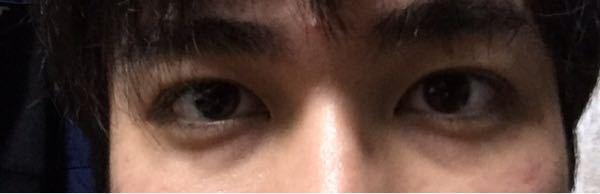 目の下たるみ 20代前半 最近目の下のたるみが目立ちはじめていて、目つきが悪くなってきている...
