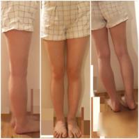 この太い足でショートパンツを履いても大丈夫でしょうか? 暖かくなったら履こうと思って今ダイエット中なのですが、どうやったら足が細くなりますか? 週三でランニング、毎日20分筋トレをしています