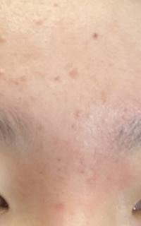 ベピオゲルを処方されて夜に塗るようになってから12日間ほど経ちました。 今朝服用部の額と眉間をみたら写真のように前から見られる皮剥けと共に赤みがみられました。 少し痒いです この場合 塗り続けた方が良いのでしょうか?母には少し塗るのを控えたらと言われたのですがベピオゲルは痒みが2週間以内に赤みが現れますが自己判断て中断せず塗り続けてくださいとネットで書かれているのですがどうすればいいので...