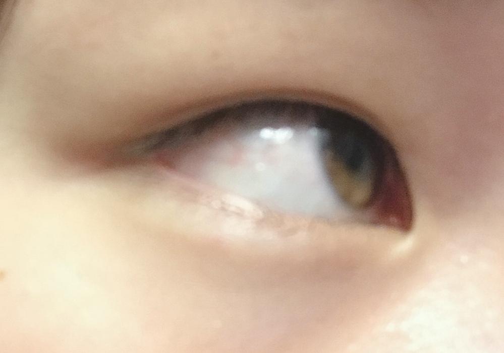 この瞼重いですよね? この瞼の脂肪はどうやったら落ちますか?痩せたら落ちますか? 157㎝の45kgです。