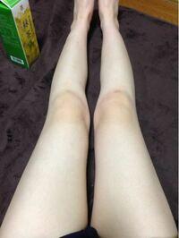 生脚をやめたくありません。 ご意見お願いします。  デニムのショーパンに生脚が自分のスタイルです。 こんな脚でも36歳独身
