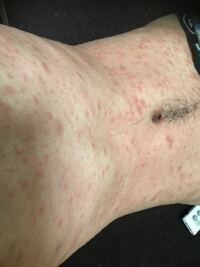 これって梅毒ですか? 一週間ほど前からお腹にぼつぼつできて かゆいです。 それからどんどん広がって今には足や腕にまで広がってます。 汚い身体ですが画像です。 お風呂上がりです