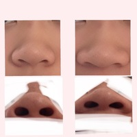 閲覧注意です。これは団子鼻、豚鼻、ニンニク鼻、あぐら鼻のどれですか ...