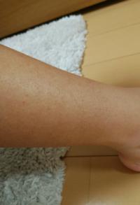 ※画像閲覧注意 学生です。 下の画像にある通り足の赤いボツボツに悩んでいます。 多分、カミソリ負けではあると思うのですが、カミソリで剃ったあと保湿はしています。 あと、脱毛クリームはエピラットというもの...