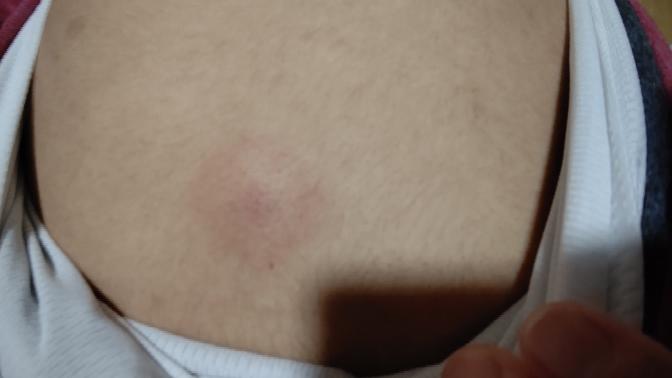 背中の真ん中に固くなって腫れて痛みがあります どうしたらいいですか?