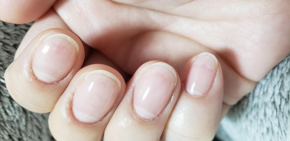 前からなんですが、マニキュア塗ると爪の中が画像みたくなります。 塗らなければなりません。 これは、何なんですか?