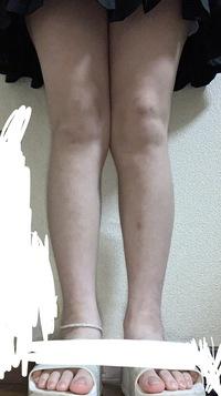 脚がごつすぎて困ってます… すらっとした細い脚になるにはどうしたらいいでしょうか(;ω;) あと、脚を閉じようとすると膝が邪魔して閉じれませんどうしたら治るんでしょうか?