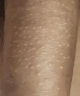 ん 赤い チ 発疹 コ