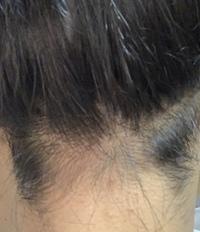 うなじの脱毛に行こうとして事前に剃っておいたのですが結局行けなくなってしまい、凄く汚い状態になってしまっています 私は普段、髪を結ばないと行けないので絶対にこのうなじが目立ってしま います、、 脱色するとか理髪店に行くかなど色々考えましたが失敗したらどうしようと思い出来ません。なにか対処法は無いでしょうか? 学校が始まる前に治したいです  お願いします。